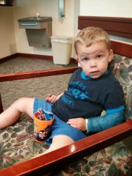 A Fractured Elbow and Bye-Bye Cast