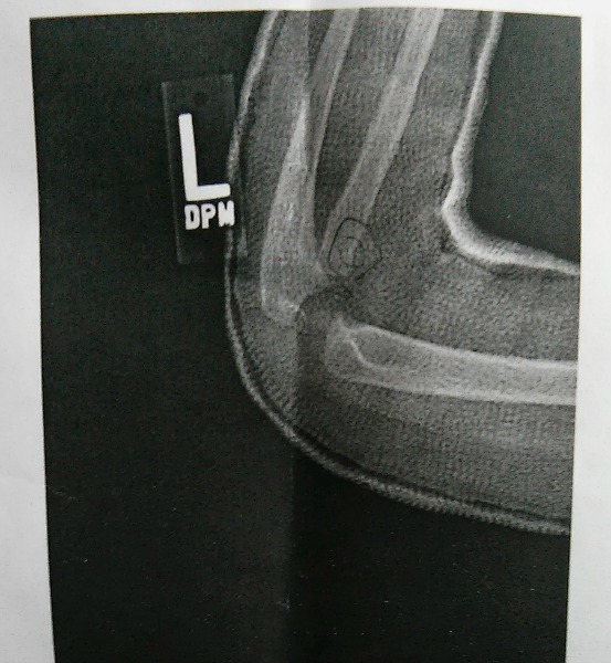 X Ray Broken Elbow A Fractured Elbow and ...