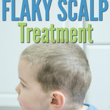 flaky scalp treatment wording with boy and dandruff hair