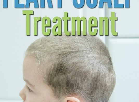 Got dandruff? Here's an all-natural flaky scalp treatment that's an effective natural alternative to harsh chemicals and it really works! (Safe for kids and adults!)