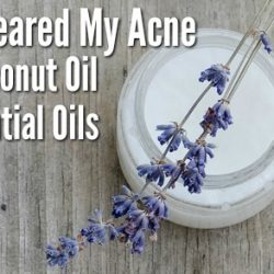 How I Cleared My Acne with Coconut Oil & Essential Oils
