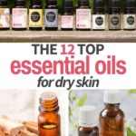 essential oil bottles for dry skin