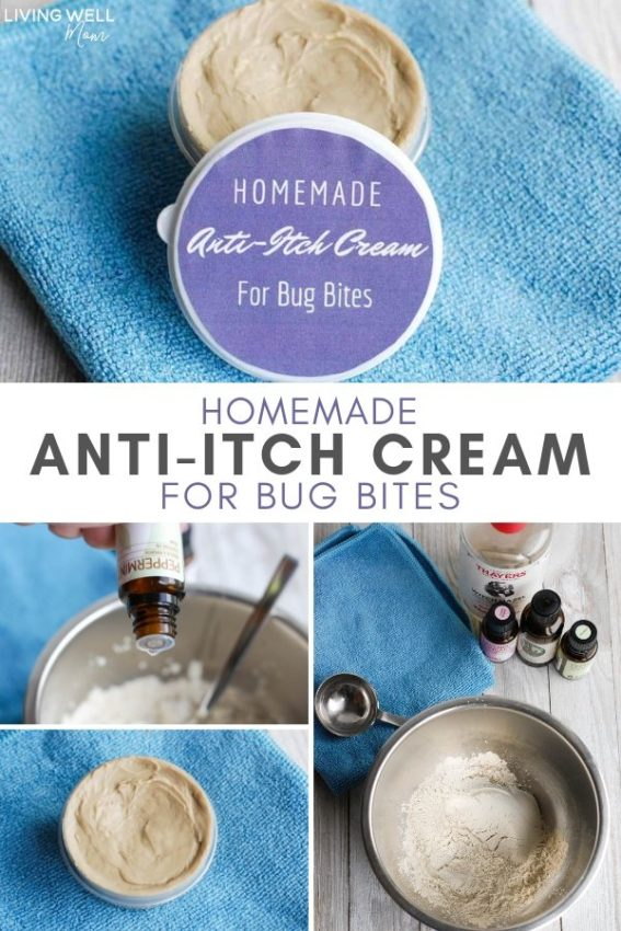 homemade anti-itch cream for bug bites