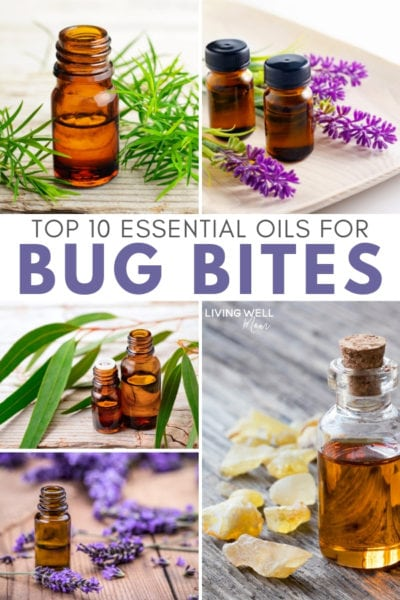 best essential oils for bug bites