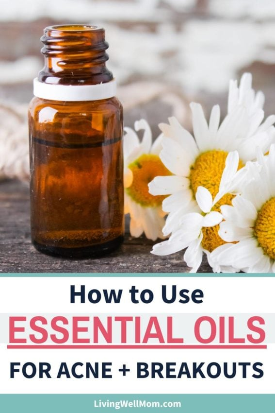 how to use essential oils for acne with chamomile flower