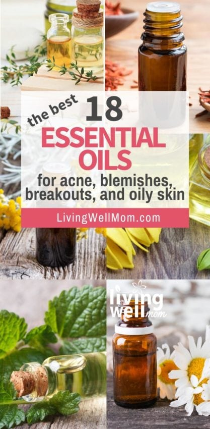 best essential oils for acne, blemishes, breakouts oily skin