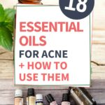 essential oils for acne and how to use them