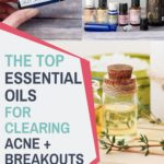 best essential oils for clearing acne and breakouts