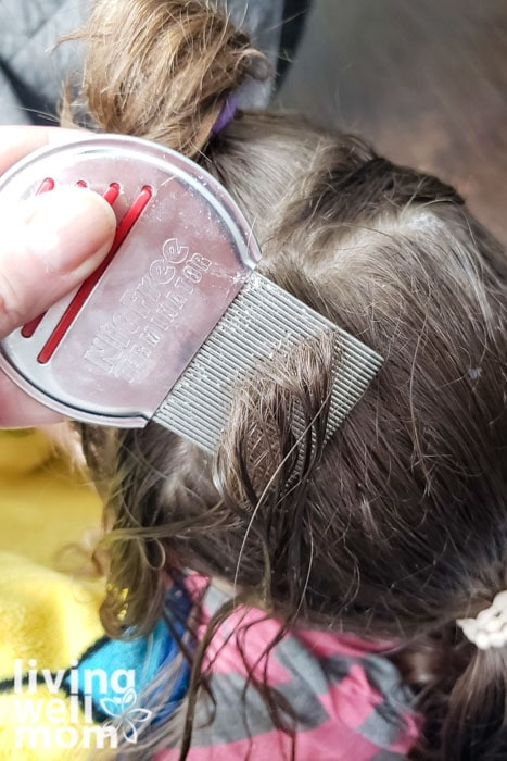 Combing out nits during a natural lice treatment at home