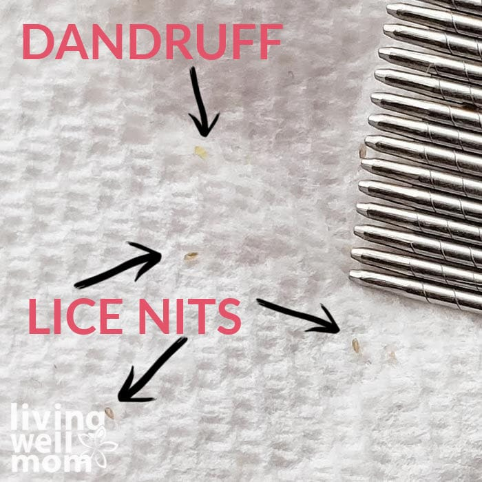 Visual showing how to tell the difference between dandruff and lice nits by using a paper towel.
