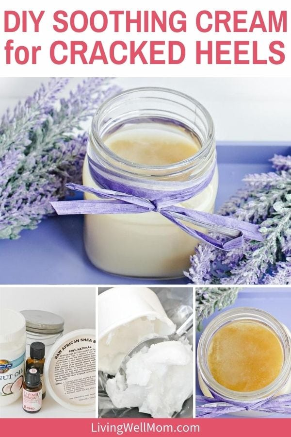 DIY foot balm with essential oils like tea tree and lavender